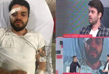 El rugbier atacado por una patota habló por primera vez en televisión